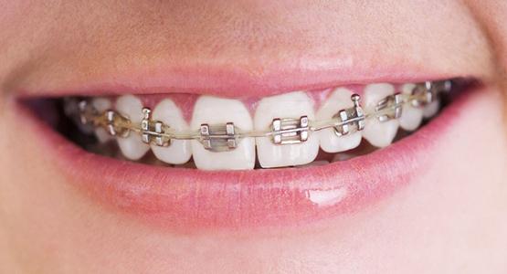 通过矫正弓丝与牙上的矫正托槽施加力量进而矫正牙齿
